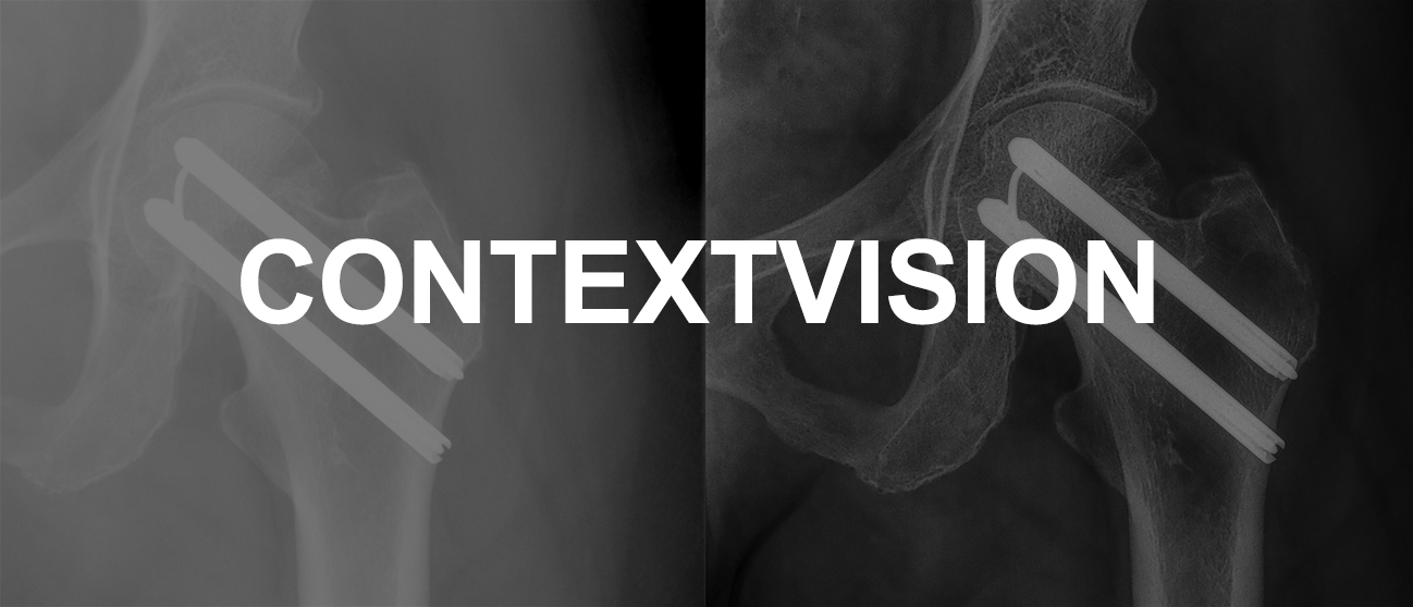 ContextVision